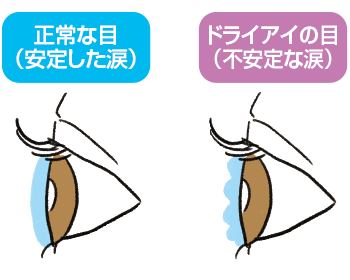 eye-care5
